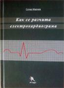 корица на Как се разчита електрокардиограма