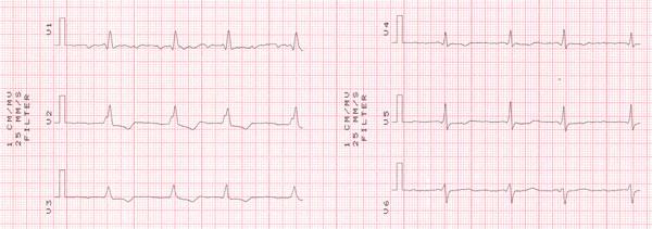 Втора част на кардиограма