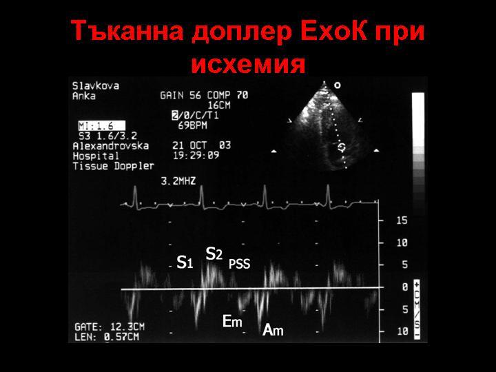 Пулсов тъканен доплер в исхемичен миокарден участък