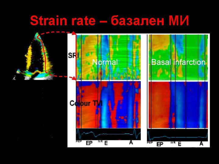Базален миокарден инфаркт