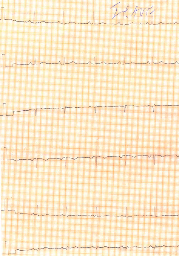 Изходна кардиограма